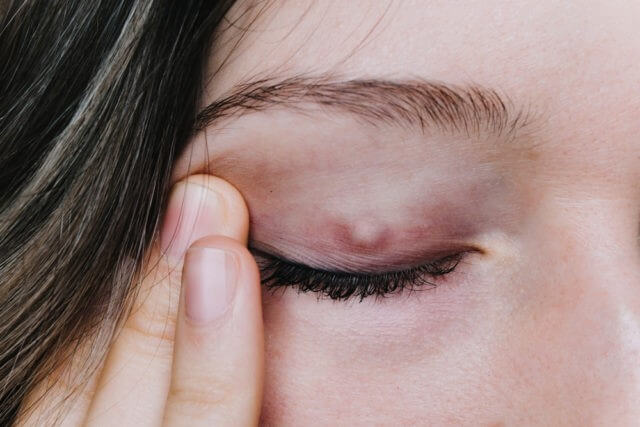 What is Chalazion?